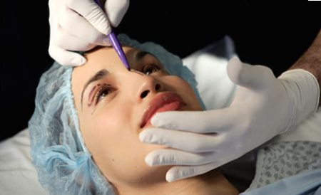 what to know about plastic surgery
