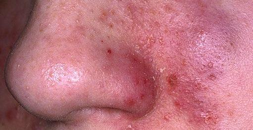Vulgaris acne