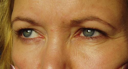 Factors influencing the appearance of wrinkles