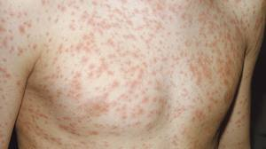 Health problems caused by measles