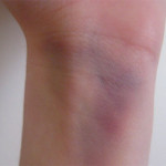Health problems caused by bruising