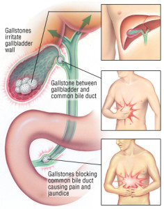 Blocking biliary