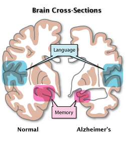 Brain normal and with Alzheimer's disease