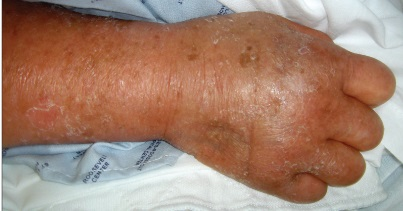 Men cancer changes occur in the skin