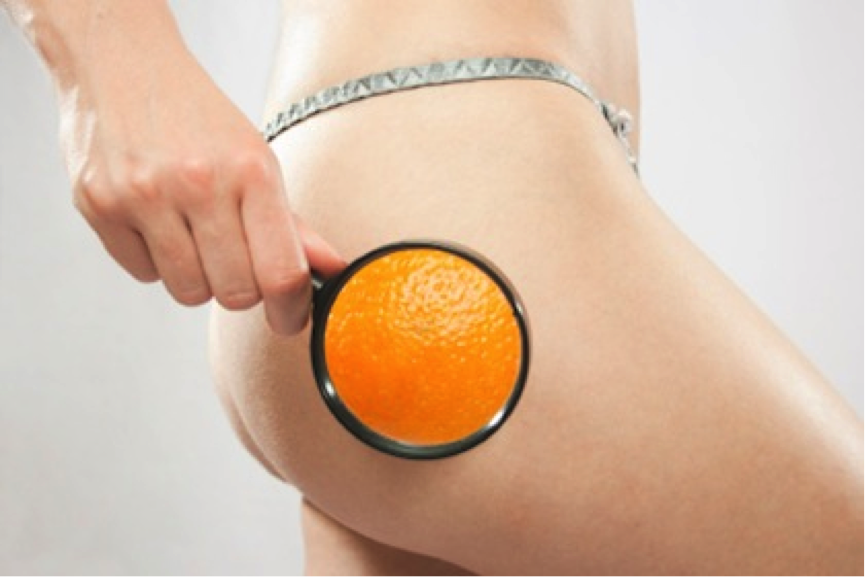 Treatments against strange cellulite
