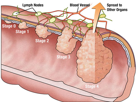 Symptoms Of Colon Cancer About Health Problems