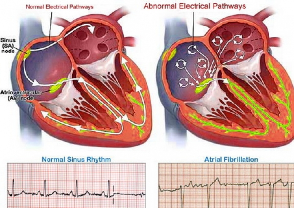 The link between atrial fibrillation and obesity