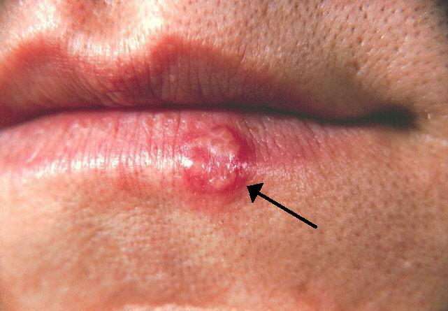 Herpes and health problems caused by herpes