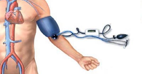 Factors that alter blood pressure