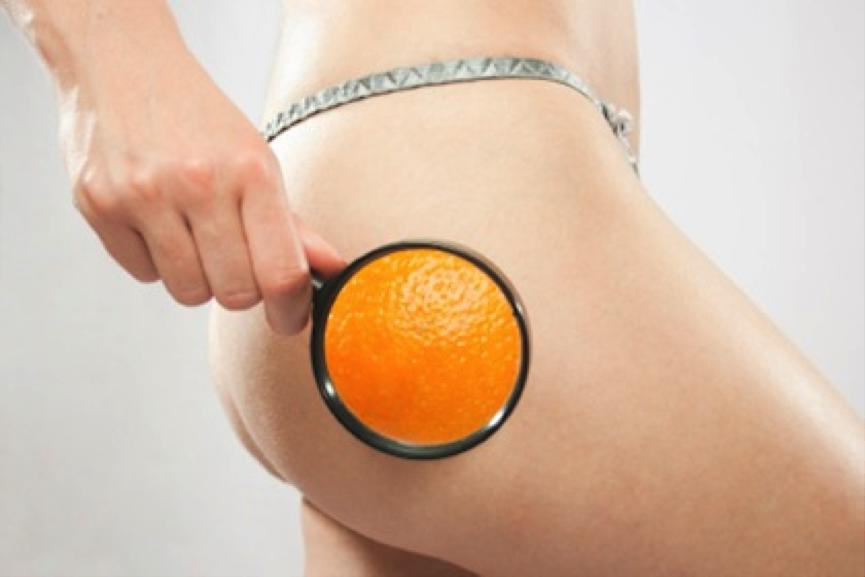 Treatments against strange cellulite